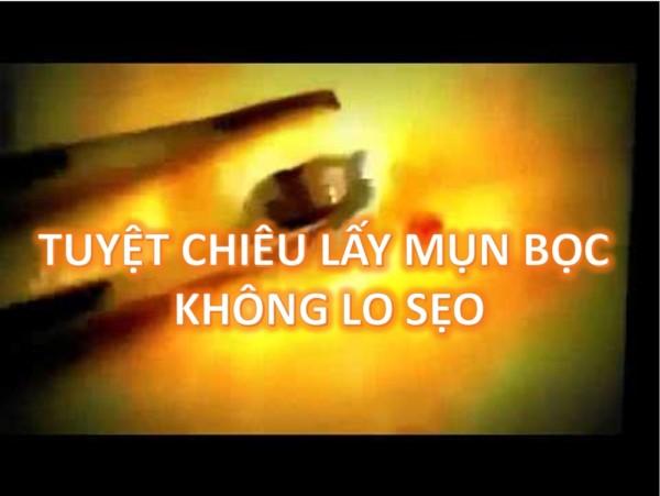 tuyet-chieu-nan-mun-khong-lo-seo