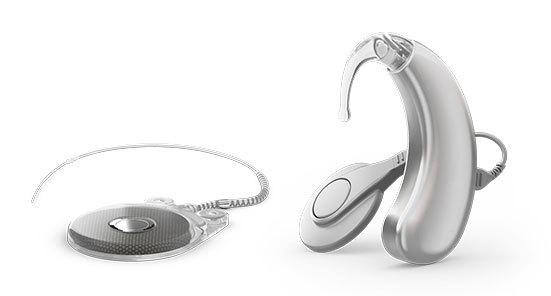 3 - Ốc tai điện tử, điện cực ốc tai là gì và hoạt động ra sao?