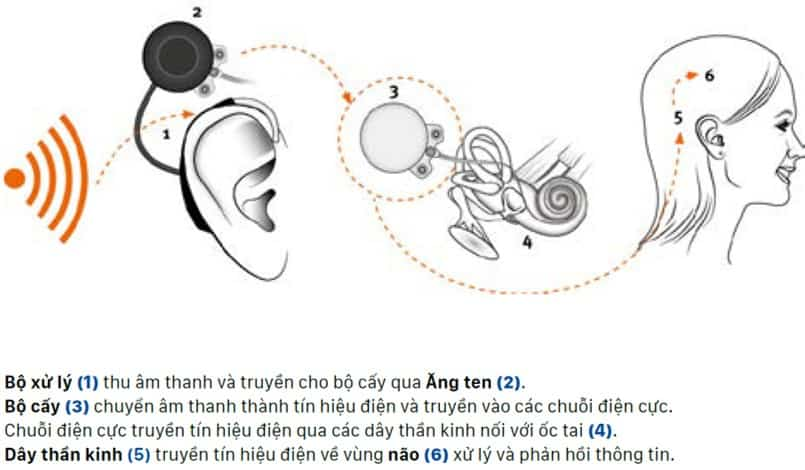 4 - Ốc tai điện tử, điện cực ốc tai là gì và hoạt động ra sao?